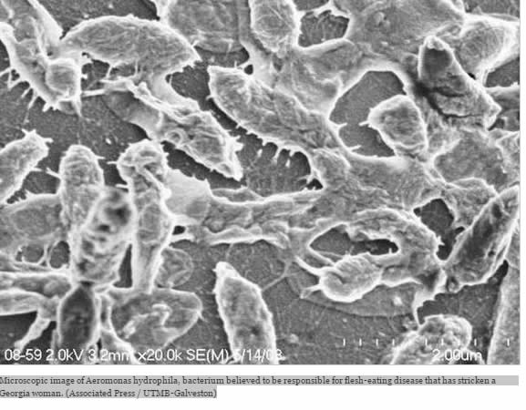 Aeromonas hydrophila bacteria believed to be responsible for flesh eating disease. http://articles.latimes.com/2012/may/15/nation/la-na-nn-flesh-eating-bacteria-20120515